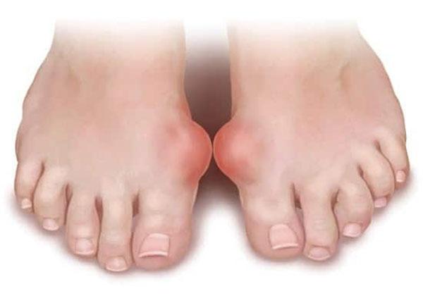 Bệnh gout là căn bệnh bị ảnh hưởng rất lớn từ chế độ ăn