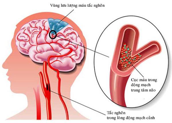 Bệnh rối loạn tuần hoàn não