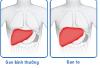 Nguyên nhân nào gây nên triệu chứng gan to là gì?