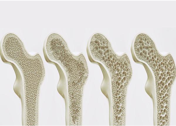 Những cấp độ của bệnh lý loãng xương