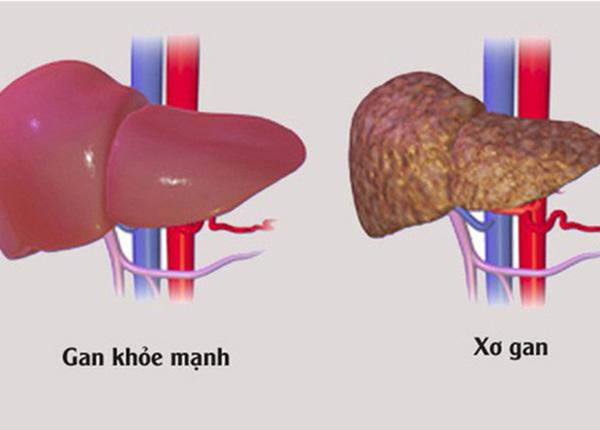So sánh tình trạng gan khỏe mạnh và xơ gan