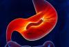 Cùng tìm hiểu bệnh viêm teo niêm mạc dạ dày mạn tính là gì?