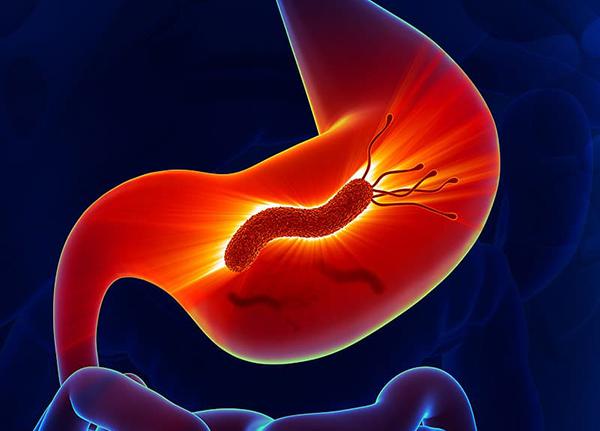 Viêm teo dạ dày là do nhiễm vi khuẩn H. pylori